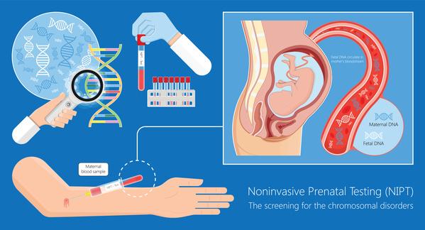 NIPTにおける遺伝カウンセリング