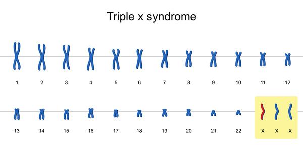 トリプルX症候群