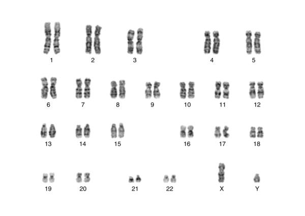 常染色体と性染色体