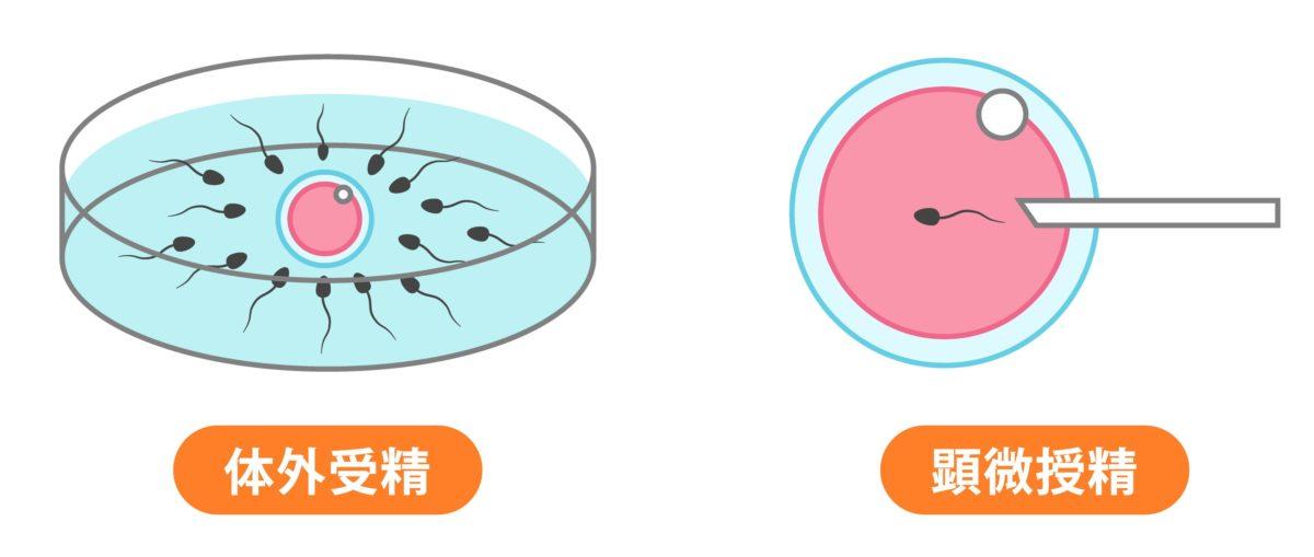体外受精と顕微授精の方法