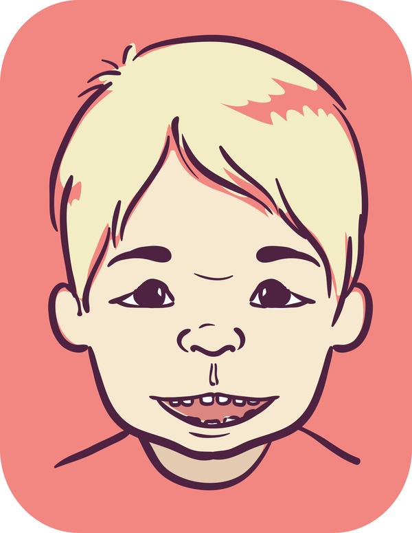 アンジェルマン症候群の顔
